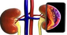 Honor троллит Apple и призывает беречь здоровье